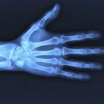 Descubren los rayos X